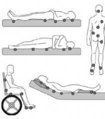puntos de presión - ¿Cómo prevenir o tratar las úlceras por presión en personas mayores?