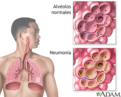 neumonía - ¿Sabes qué puede causar una neumonía en ancianos? y consejos para evitarla